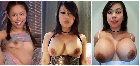 The changes in Tigerr Benson's breasts over the years.