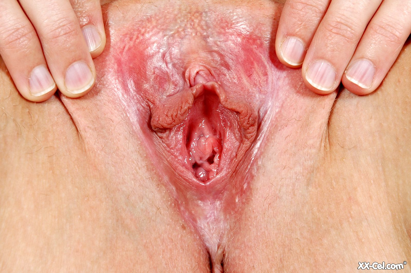 photo of the vagina